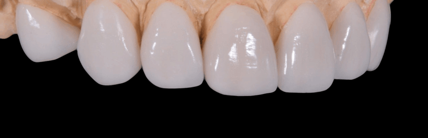 Tooth-Colored Restorations are Better Than Temporary Dental Filling in Thornhill