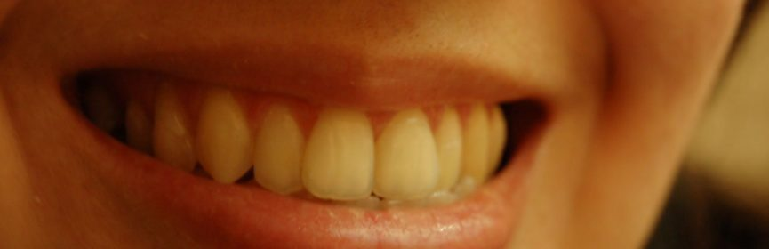 How Much Does Wisdom Teeth Removal Cost?