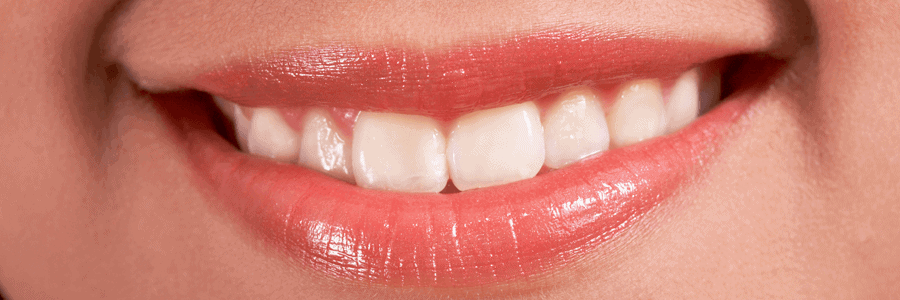 Instant Teeth Whitening: Are the Results Really that Fast?